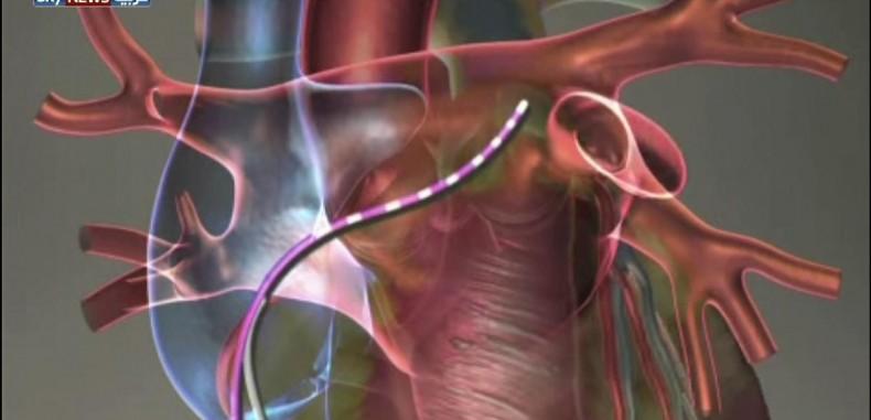 دراسة تكشف كيف يتسبب التلوث بالأزمات القلبية ..